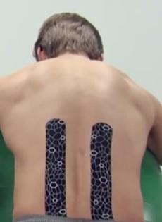 Kinesiology Tape for Lower Back Dr Doerr